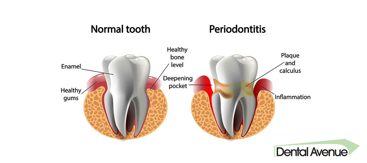 treatment_for_periodontitis